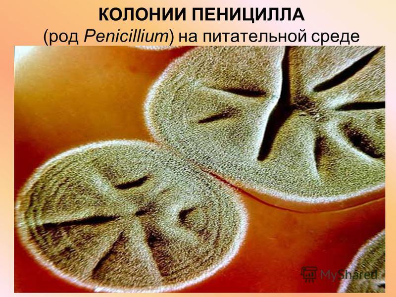 КОЛОНИИ ПЕНИЦИЛЛА (род Penicillium) на питательной среде