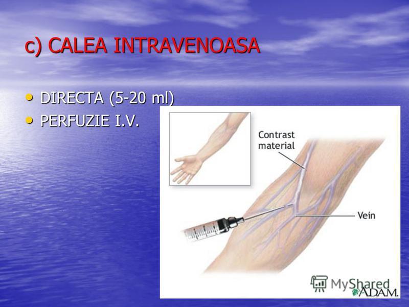 c) CALEA INTRAVENOASA DIRECTA (5-20 ml) DIRECTA (5-20 ml) PERFUZIE I.V. PERFUZIE I.V.