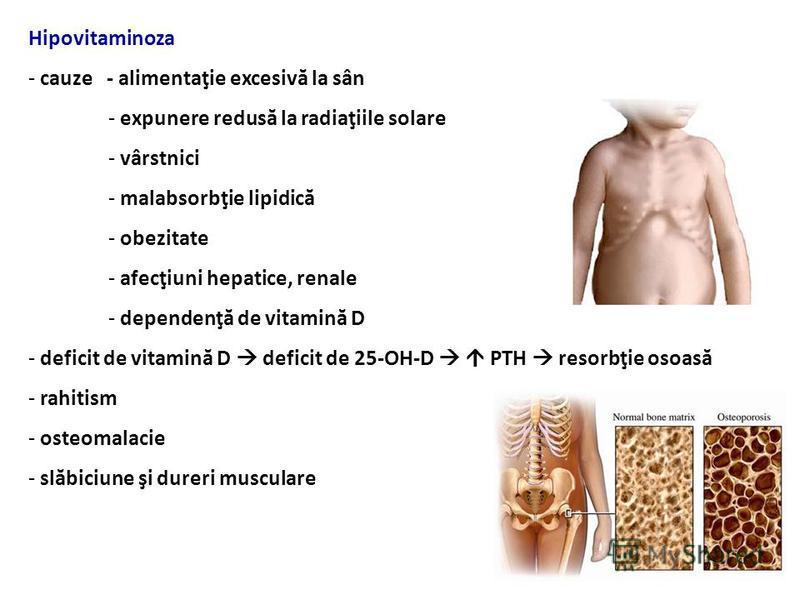 Efecte biologice -1,25 (OH) 2 vitamin D 3 fixare pe VDR - reglarea nivelului Ca seric – creşte abs, scade elim, eliberarea din depozite - 1,25 (OH) 2 vitamin D 3 inh. proliferarea şi stim. diferenţierea celulelor - modulator al sistemului imunitar -