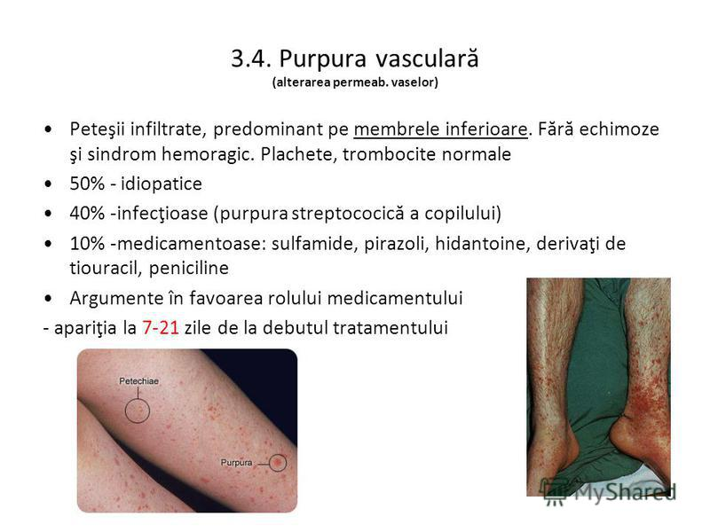 3.4. Purpura vasculară (alterarea permeab. vaselor) Peteşii infiltrate, predominant pe membrele inferioare. Fără echimoze şi sindrom hemoragic. Plachete, trombocite normale 50% - idiopatice 40% -infecţioase (purpura streptococică a copilului) 10% -me