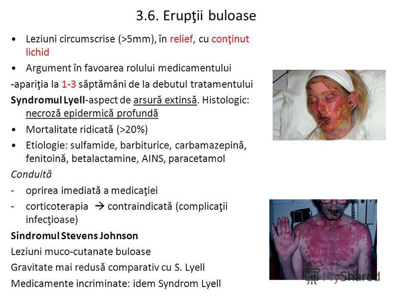 3.6. Erupţii buloase Leziuni circumscrise (>5mm), în relief, cu conţinut lichid Argument în favoarea rolului medicamentului -apariţia la 1-3 săptămâni de la debutul tratamentului Syndromul Lyell-aspect de arsură extinsă. Histologic: necroză epidermic