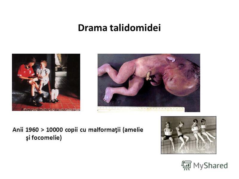 Drama talidomidei Anii 1960 > 10000 copii cu malformaţii (amelie şi focomelie)