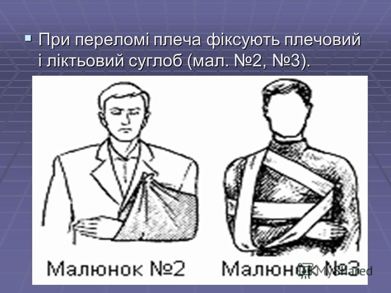 При переломі плеча фіксують плечовий і ліктьовий суглоб (мал. 2, 3). При переломі плеча фіксують плечовий і ліктьовий суглоб (мал. 2, 3).