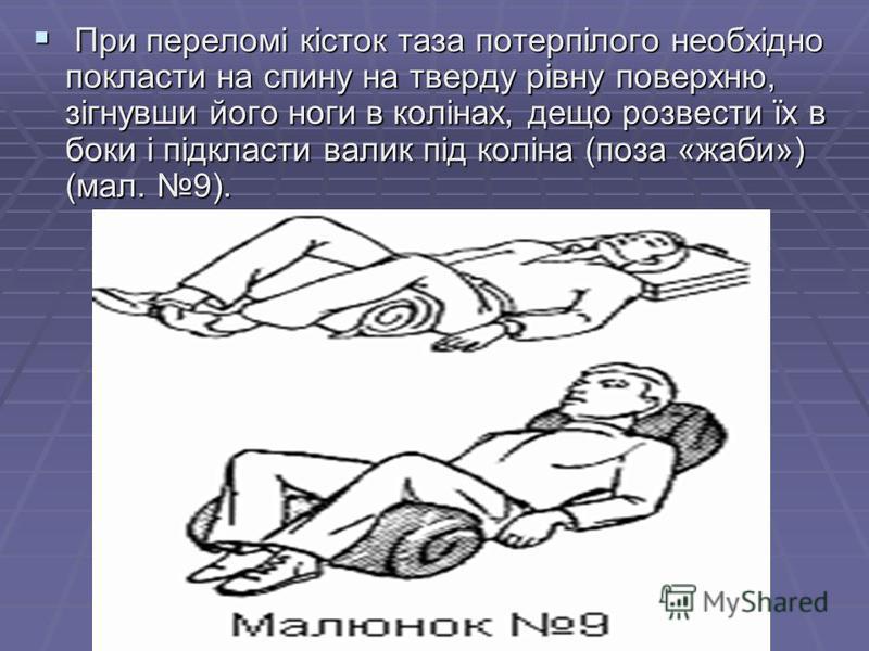 При переломі кісток таза потерпілого необхідно покласти на спину на тверду рівну поверхню, зігнувши його ноги в колінах, дещо розвести їх в боки і підкласти валик під коліна (поза «жаби») (мал. 9). При переломі кісток таза потерпілого необхідно покла