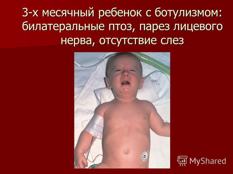 3-х месячный ребенок с ботулизмом: билатеральные птоз, парез лицевого нерва, отсутствие слез