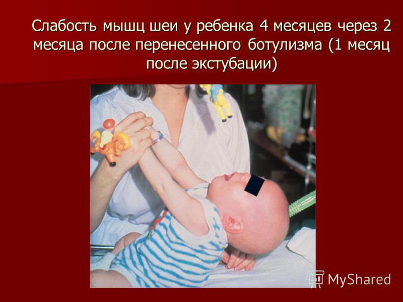Слабость мышц шеи у ребенка 4 месяцев через 2 месяца после перенесенного ботулизма (1 месяц после экстубации)