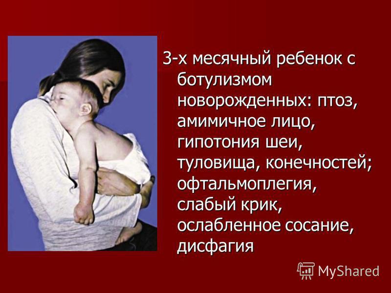 3-х месячный ребенок с ботулизмом новорожденных: птоз, амимичное лицо, гипотония шеи, туловища, конечностей; офтальмоплегия, слабый крик, ослабленное сосание, дисфагия