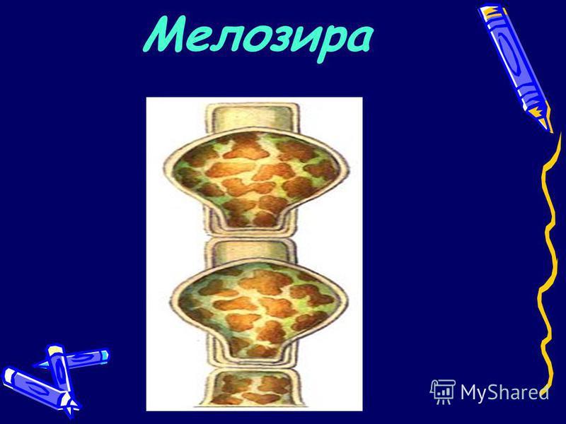 Мелозира