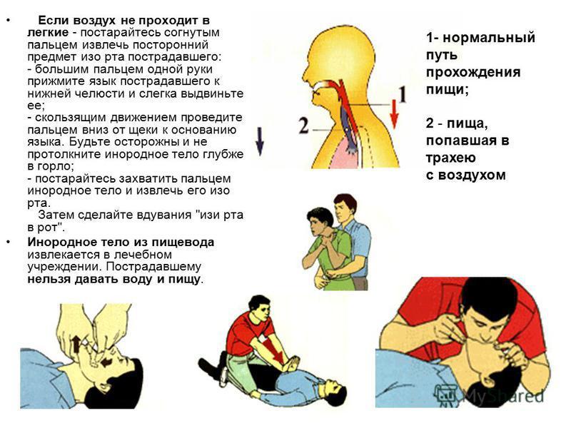 Если воздух не проходит в легкие - постарайтесь согнутым пальцем извлечь посторонний предмет изо рта пострадавшего: - большим пальцем одной руки прижмите язык пострадавшего к нижней челюсти и слегка выдвиньте ее; - скользящим движением проведите паль