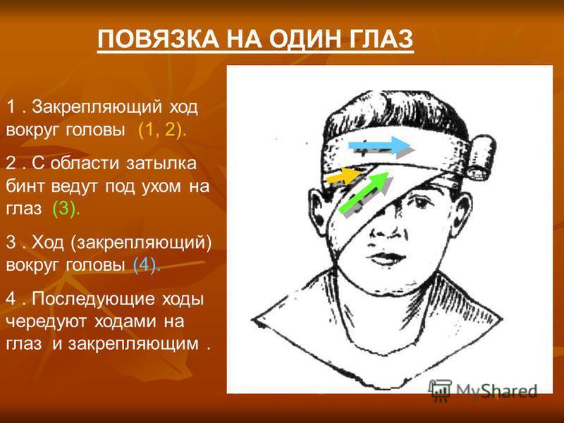 ПОВЯЗКА НА ОДИН ГЛАЗ 1. Закрепляющий ход вокруг головы (1, 2). 2. С области затылка бинт ведут под ухом на глаз (3). 3. Ход (закрепляющий) вокруг головы (4). 4. Последующие ходы чередуют ходами на глаз и закрепляющим.