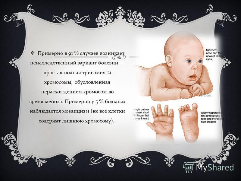 Примерно в 91 % случаев возникает ненаследственный вариант болезни простая полная трисомия 21 хромосомы, обусловленная нерасхождением хромосом во время мейоза. Примерно у 5 % больных наблюдается мозаицизм ( не все клетки содержат лишнюю хромосому ).