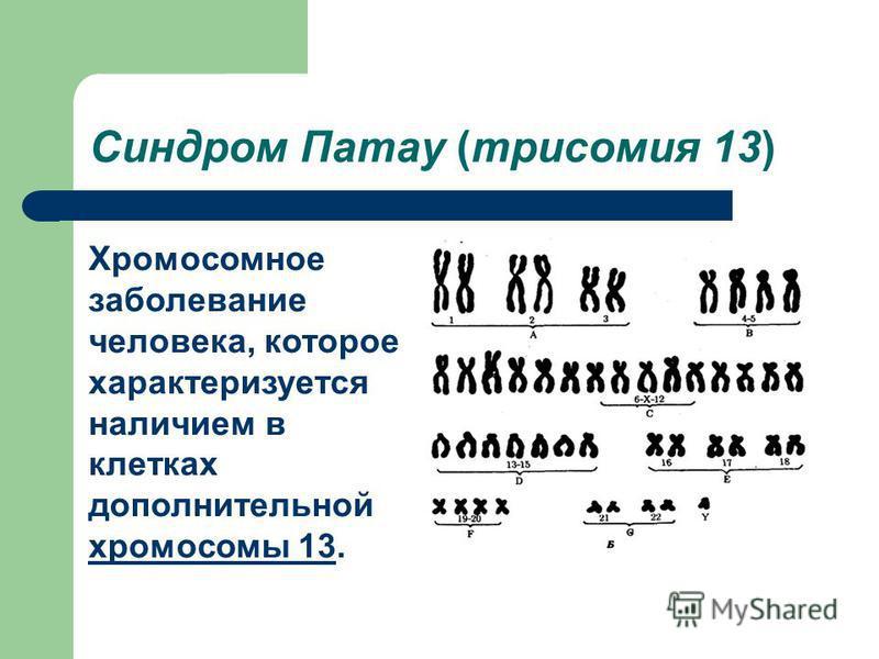 Синдром Патау (трисомия 13) Хромосомное заболевание человека, которое характеризуется наличием в клетках дополнительной хромосомы 13. хромосомы 13