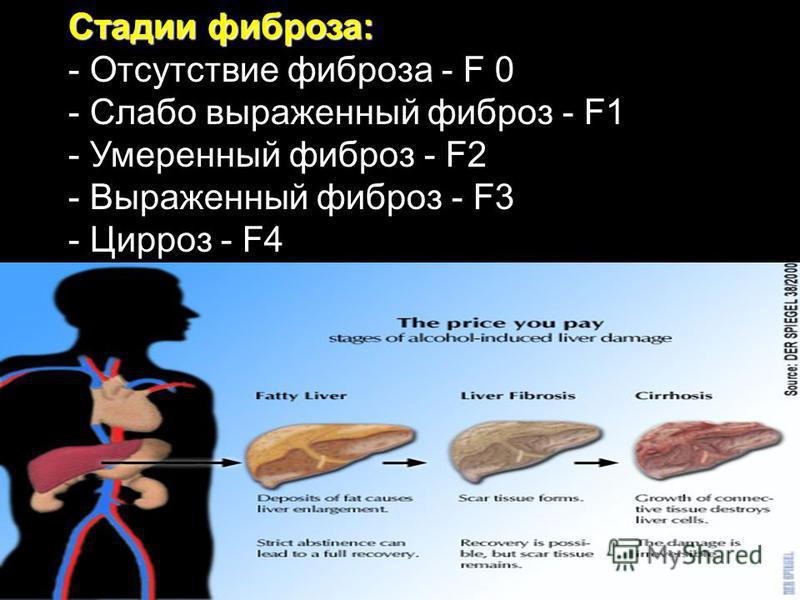 Стадии фиброза: - Отсутствие фиброза - F 0 - Слабо выраженный фиброз - F1 - Умеренный фиброз - F2 - Выраженный фиброз - F3 - Цирроз - F4