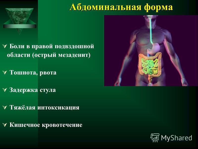 Абдоминальная форма Боли в правой подвздошной области (острый мезаденит) Тошнота, рвота Задержка стула Тяжёлая интоксикация Кишечное кровотечение