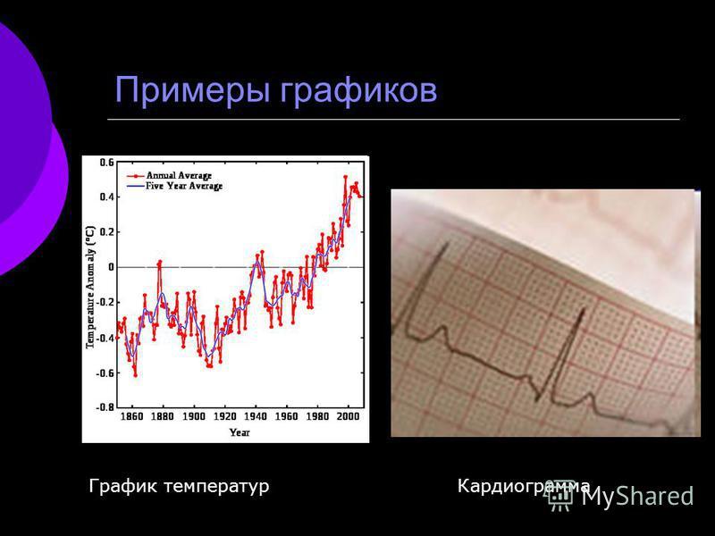 Примеры графиков График температур Кардиограмма