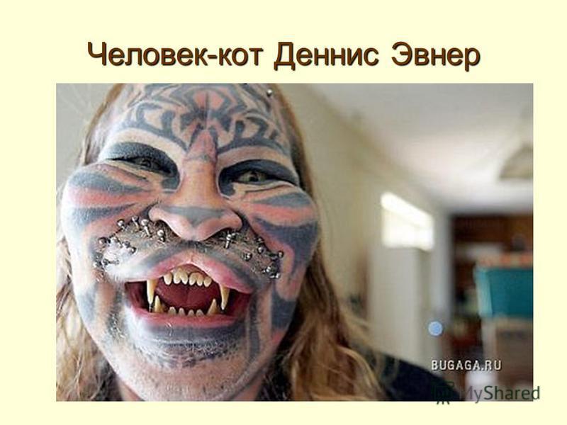 Человек-кот Деннис Эвнер