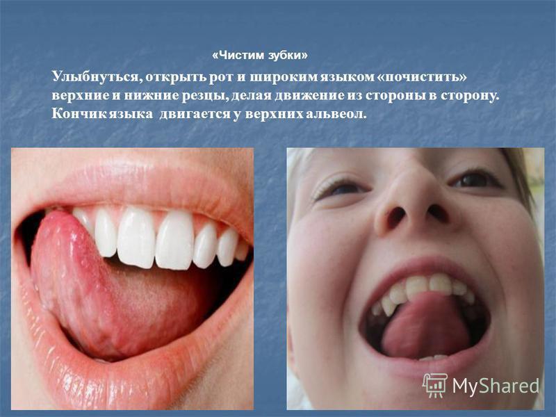 «Чистим зубки» Улыбнуться, открыть рот и широким языком «почистить» верхние и нижние резцы, делая движение из стороны в сторону. Кончик языка двигается у верхних альвеол.