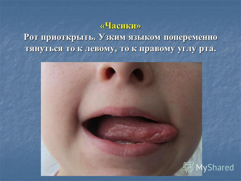 «Часики» Рот приоткрыть. Узким языком попеременно тянуться то к левому, то к правому углу рта.
