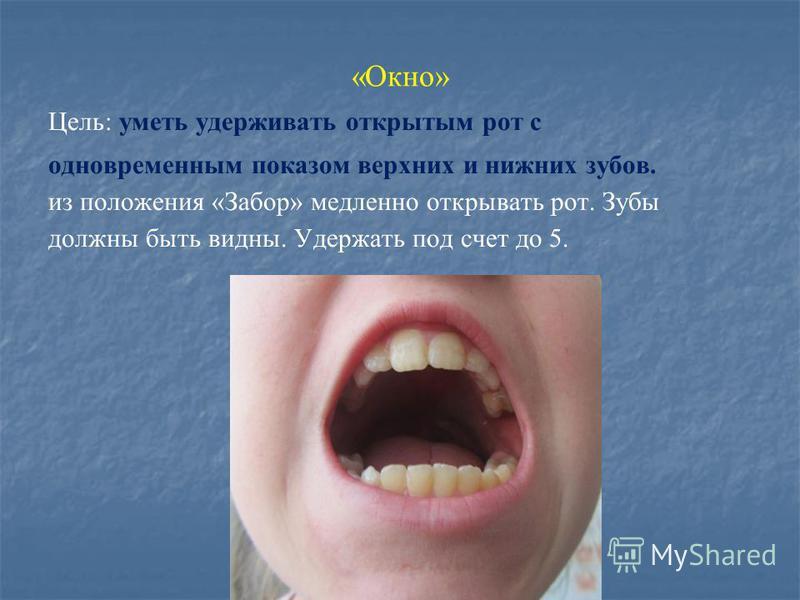 «Окно» Цель: уметь удерживать открытым рот с одновременным показом верхних и нижних зубов. из положения «Забор» медленно открывать рот. Зубы должны быть видны. Удержать под счет до 5.
