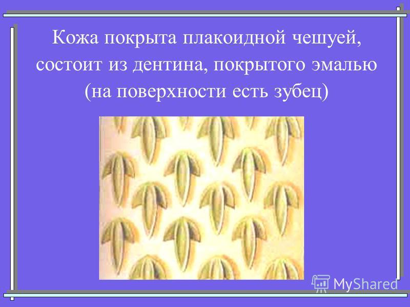 Кожа покрыта плакоидной чешуей, состоит из дентина, покрытого эмалью (на поверхности есть зубец)