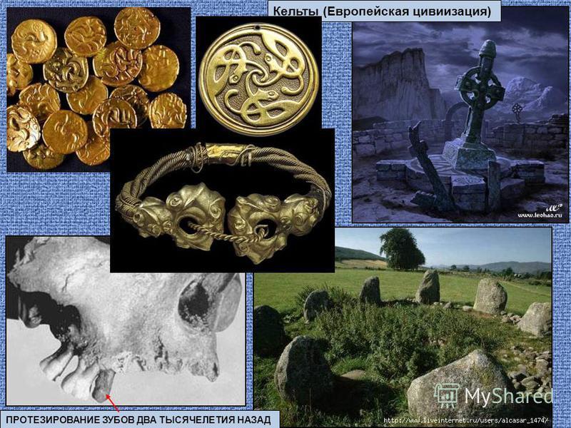 ПРОТЕЗИРОВАНИЕ ЗУБОВ ДВА ТЫСЯЧЕЛЕТИЯ НАЗАД Кельты (Европейская цивилизация)