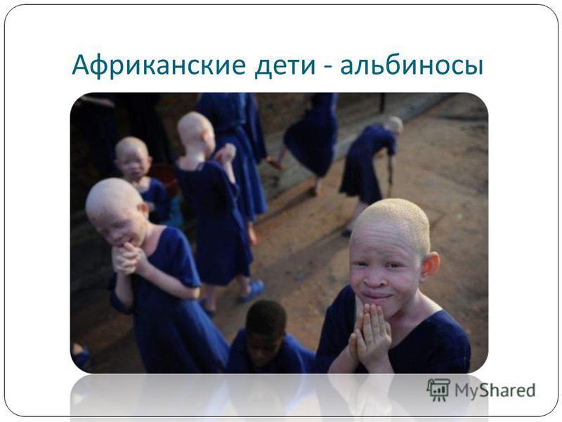 Африканские дети - альбиносы