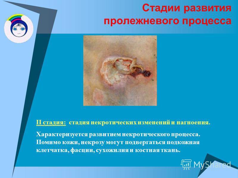 Стадии развития пролежневого процесса II стадия: стадия некротических изменений и нагноения. Характеризуется развитием некротического процесса. Помимо кожи, некрозу могут подвергаться подкожная клетчатка, фасции, сухожилия и костная ткань.