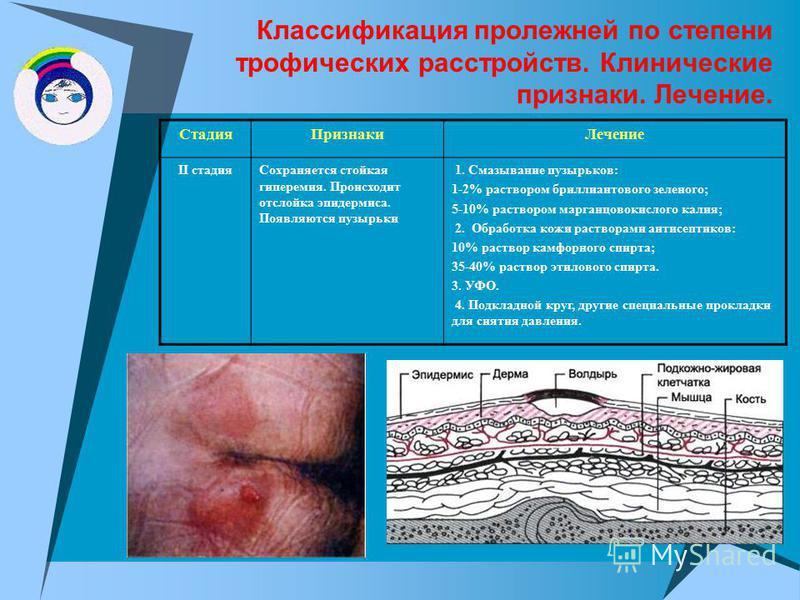 Классификация пролежней по степени трофических расстройств. Клинические признаки. Лечение. Стадия ПризнакиЛечение II стадия Сохраняется стойкая гиперемия. Происходит отслойка эпидермиса. Появляются пузырьки 1. Смазывание пузырьков: 1-2% раствором бри