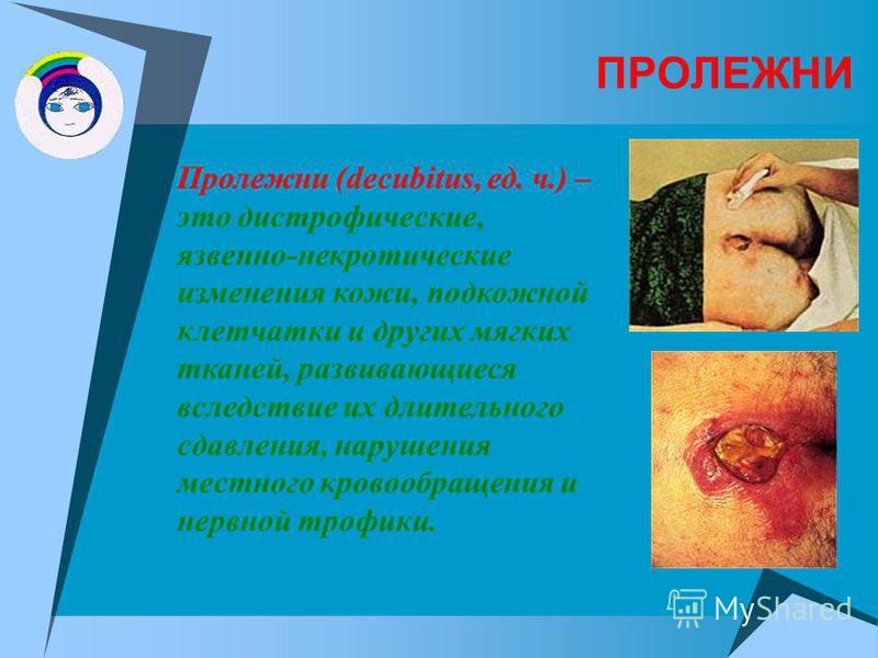ПРОЛЕЖНИ Пролежни (decubitus, ед. ч.) – это дистрофические, язвенно-некротические изменения кожи, подкожной клетчатки и других мягких тканей, развивающиеся вследствие их длительного сдавления, нарушения местного кровообращения и нервной трофики.