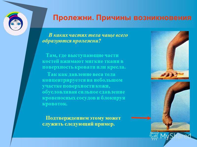 Пролежни. Причины возникновения В каких частях тела чаще всего образуются пролежни? Там, где выступающие части костей вжимают мягкие ткани в поверхность кровати или кресла. Так как давление веса тела концентрируется на небольшом участке поверхности к