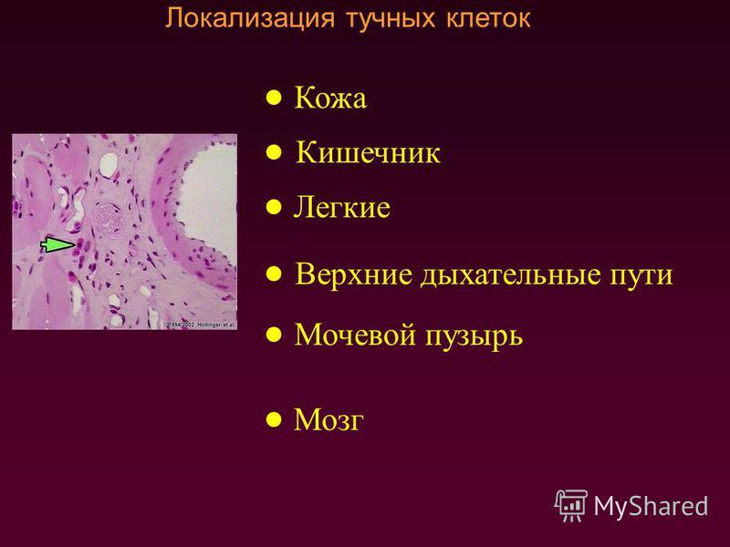 Локализация тучных клеток Кишечник Легкие Верхние дыхательные пути Мочевой пузырь Мозг Кожа