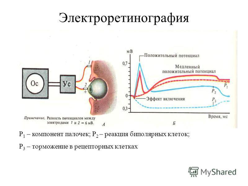 Электроретинография Р 1 – компонент палочек; Р 2 – реакция биполярных клеток; Р 3 – торможение в рецепторных клетках