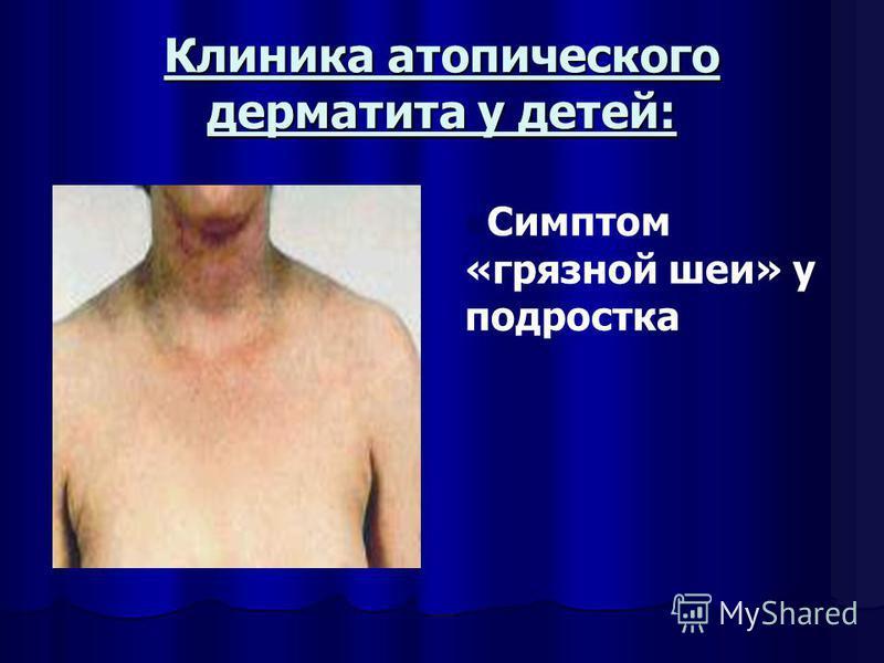 Клиника атопического дерматита у детей: n Симптом «грязной шеи» у подростка