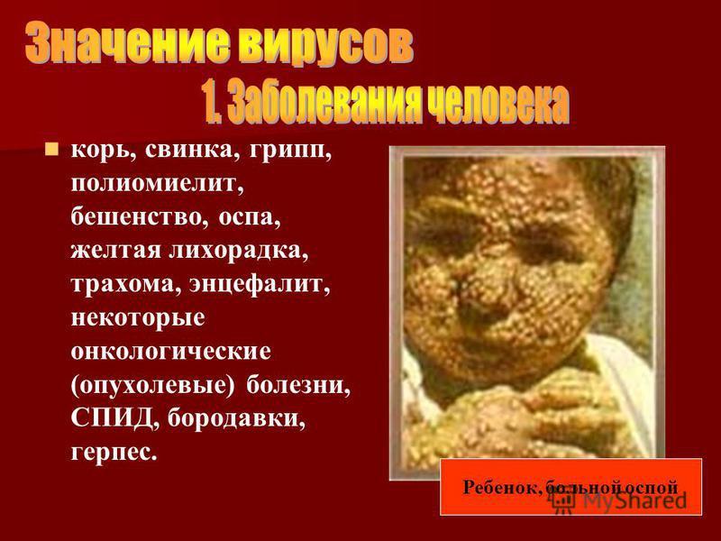 корь, свинка, грипп, полиомиелит, бешенство, оспа, желтая лихорадка, трахома, энцефалит, некоторые онкологические (опухолевые) болезни, СПИД, бородавки, герпес. Ребенок, больной оспой