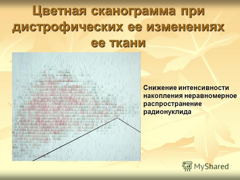 Цветная сканограмма при дистрофических ее изменениях ее ткани Снижение интенсивности накопления неравномерное распространение радионуклида