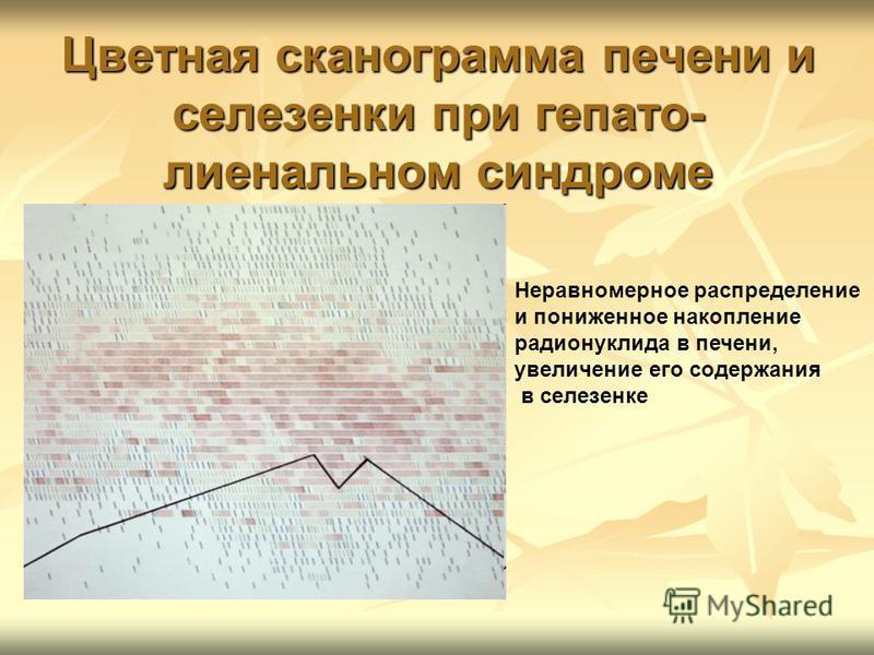 Цветная сканограмма печени и селезенки при гепато- лиенальном синдроме Неравномерное распределение и пониженное накопление радионуклида в печени, увеличение его содержания в селезенке