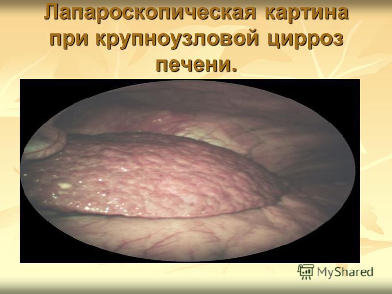 Лапароскопическая картина при крупноузловой цирроз печени.