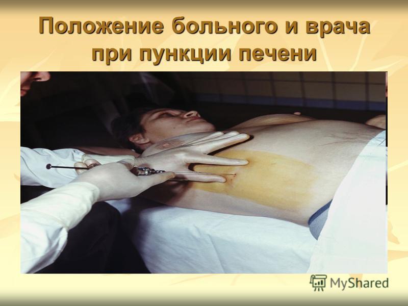 Положение больного и врача при пункции печени