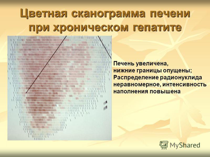 Цветная сканограмма печени при хроническом гепатите Печень увеличена, нижние границы опущены; Распределение радионуклида неравномерное, интенсивность наполнения повышена