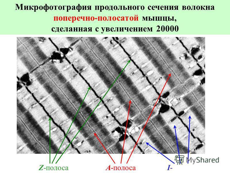 Микрофотография продольного сечения волокна поперечно-полосатой мышцы, сделанная с увеличением 20000 Z-полоса A-полоса I- полоса