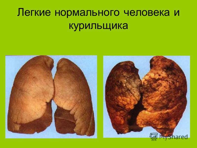 Легкие нормального человека и курильщика