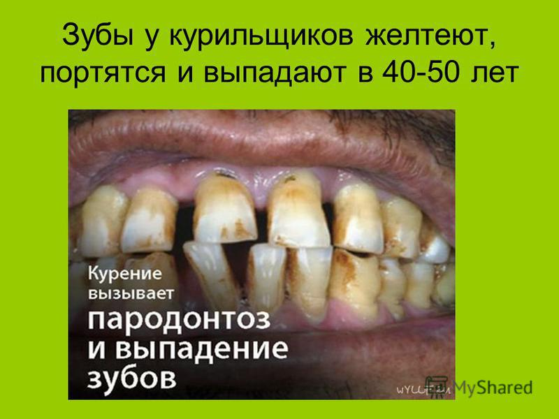 Зубы у курильщиков желтеют, портятся и выпадают в 40-50 лет