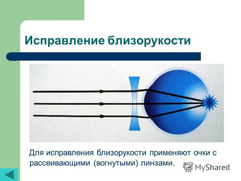 Исправление близорукости Для исправления близорукости применяют очки с рассеивающими (вогнутыми) линзами.