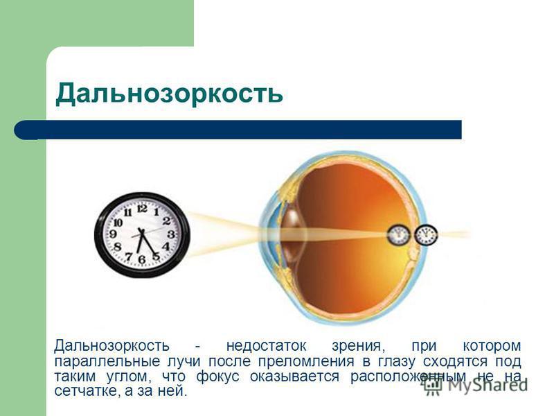 Дальнозоркость Дальнозоркость - недостаток зрения, при котором параллельные лучи после преломления в глазу сходятся под таким углом, что фокус оказывается расположенным не на сетчатке, а за ней.