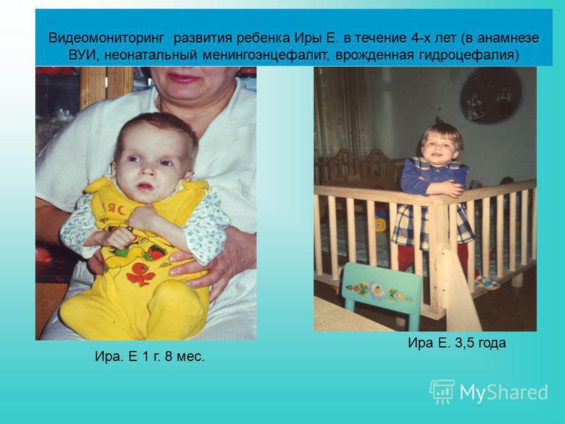 Видеомониторинг развития ребенка Иры Е. в течение 4-х лет (в анамнезе ВУИ, неонатальный менингоэнцефалит, врожденная гидроцефалия) Ира. Е 1 г. 8 мес. Ира Е. 3,5 года