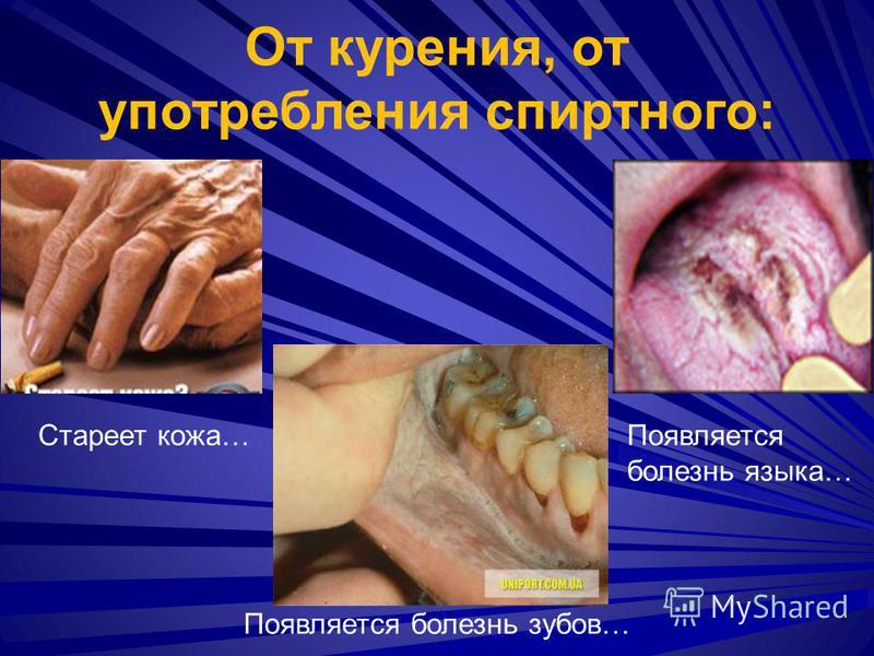Стареет кожа…Появляется болезнь языка… Появляется болезнь зубов… От курения, от употребления спиртного: