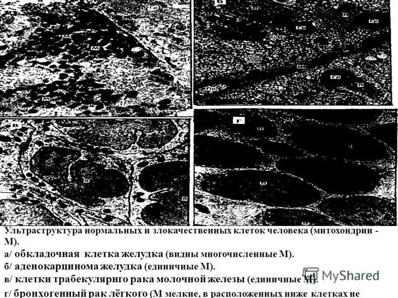 Ультраструктура нормальных и злокачественных клеток человека (митохондрии - М). а/ обкладочная клетка желудка (видны многочисленные М). б/ аденокарцинома желудка (единичные М). в/ клетки трабекулярнго рака молочной железы (единичные М). г/ бронхогенн