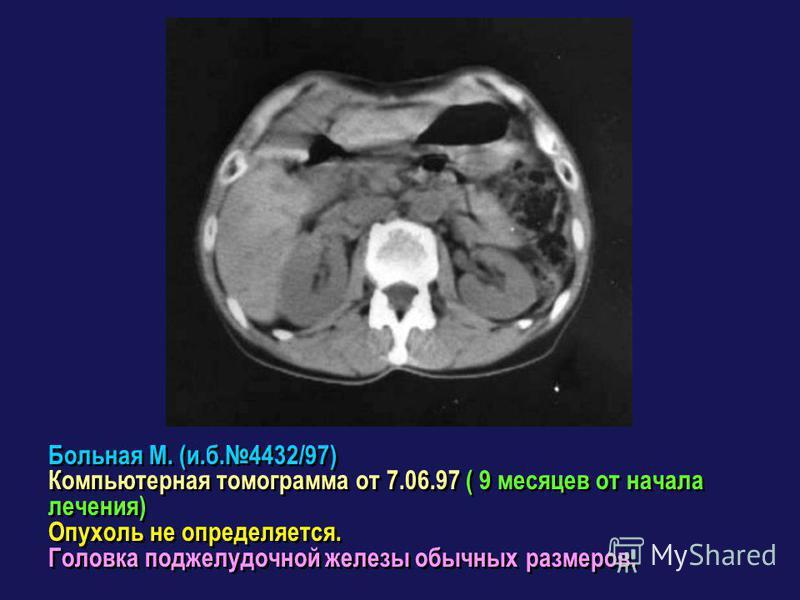 Больная М. (и.б.4432/97) Компьютерная томограмма от 7.06.97 ( 9 месяцев от начала лечения) Опухоль не определяется. Головка поджелудочной железы обычных размеров. Больная М. (и.б.4432/97) Компьютерная томограмма от 7.06.97 ( 9 месяцев от начала лечен