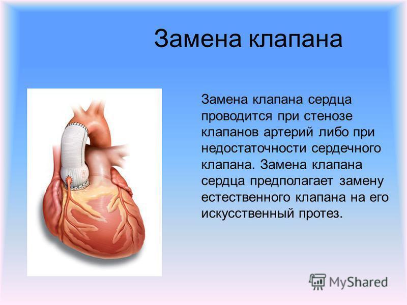 Замена клапана Замена клапана сердца проводится при стенозе клапанов артерий либо при недостаточности сердечного клапана. Замена клапана сердца предполагает замену естественного клапана на его искусственный протез.
