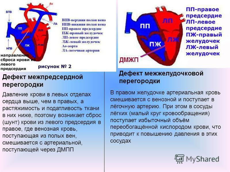 Дефект межпредсердной перегородки Дефект межжелудочковой перегородки В правом желудочке артериальная кровь смешивается с венозной и поступает в лёгочную артерию. При этом в сосуды лёгких (малый круг кровообращения) поступает избыточный объём переобог